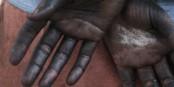 Bei der Arbeit mit Maschinen im Graphikbereich kann man sich schon mal die Hände schmutzig machen. Nicht schlimm... Foto: Veranstalter
