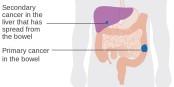 D'un développement lent et longtemps asymptomatique, le cancer colorectal peut essaimer vers d'autres organes, dont le foie. Foto: Cancer Research UK / Wikimedia Commons / CC-BY-SA 4.0int